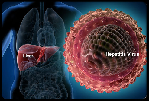 Hepatitis S1 Liver Hepatitis Virus